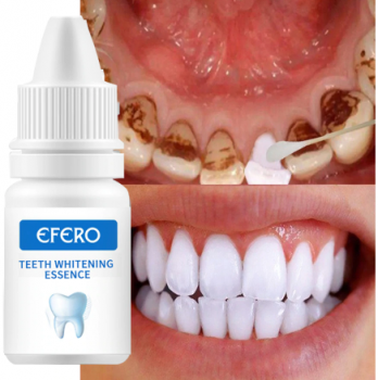Teeth Whitening Seru…