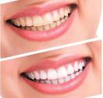 Teeth Whitening Kit Bleaching …