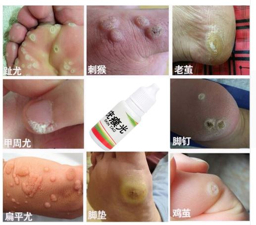 Mole Genital Wart Treatment Cr…